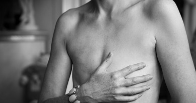 mastectomy myths- Netmarkers