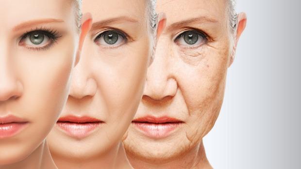 wrinkles-Netmarkers