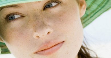 dark-spots on face-Netmarkers
