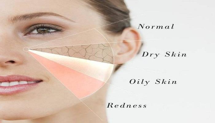 skin type-Netmarkers
