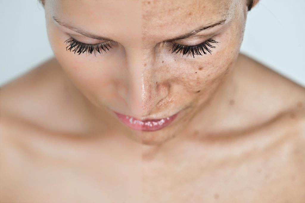 top home remedies for hyperpigmentation- Netmarkers