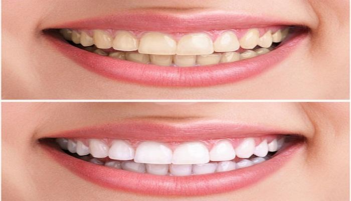 white teeth-Netmarkers