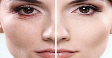 Get-Rid-of-Wrinkles-Netmarkers