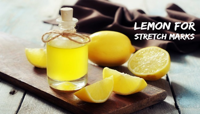Lemon-for-Stretch-Marks-netmarkers