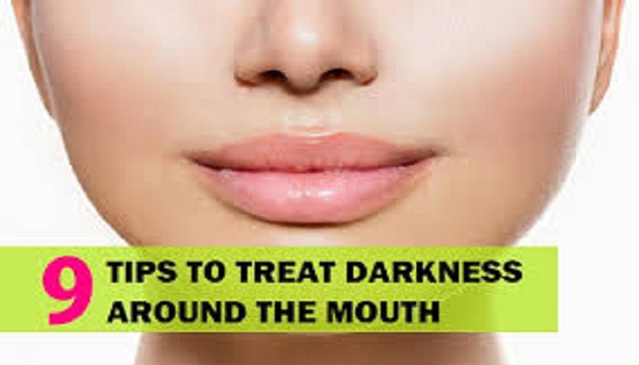 remedies-to-cure-darkness-around-mouth-and-lips-netmarkers