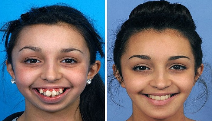story-of-a-girl-whose-life-changed-after-dental-surgery-netmarkers