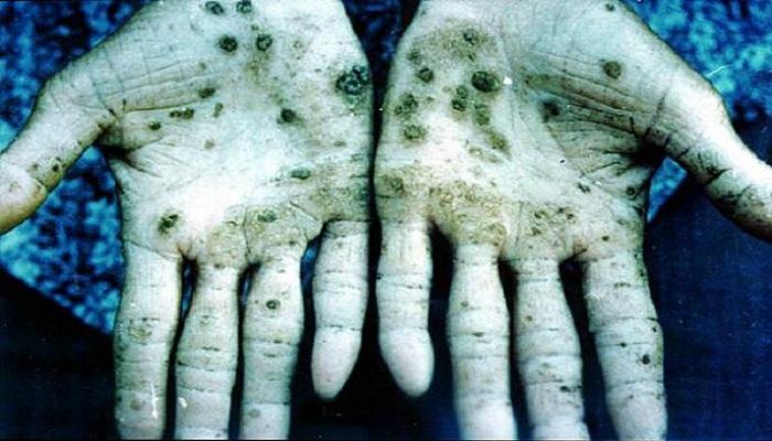 arsenic effects-Netmarkers