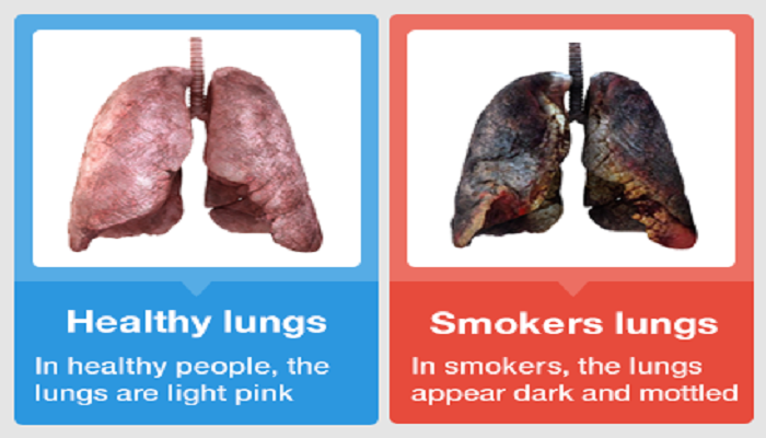 smokers-lungs-Netmarkers