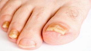 toenail-fungus-netmarkers