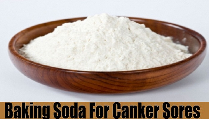 baking-soda-for-canker-sores-netmarkers