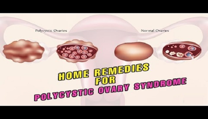 best-home-remedies-for-polycystic-ovarian-syndrome-netmarkers