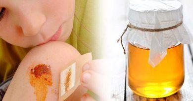 honey-on-wounds-netmarkers