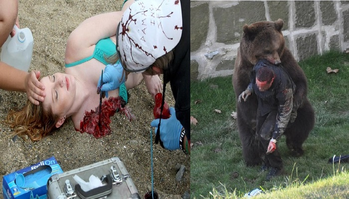 10-most-horrible-animal-attacks-on-humans-netmarkers