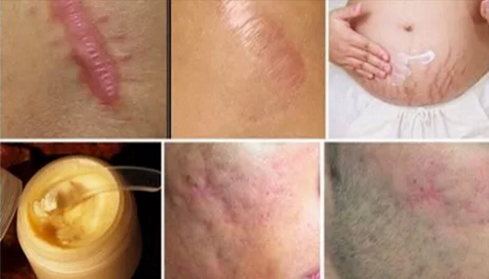 eliminate-scars-from-any-part-of-your-body-in-less-than-a-month-netmarkers