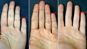 long-little-finger-netmarkers