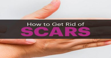 how-to-remove-scars-netmarkers