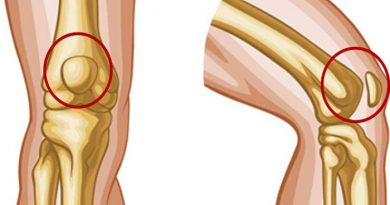 knee-pain-netmarkers