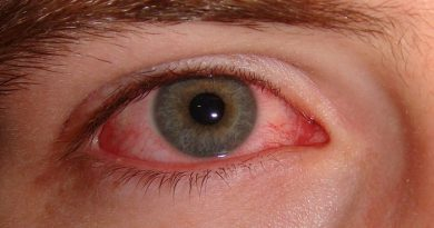 How-to-avoid-infections-that-cause-harm-to-eyes-Netmarkers