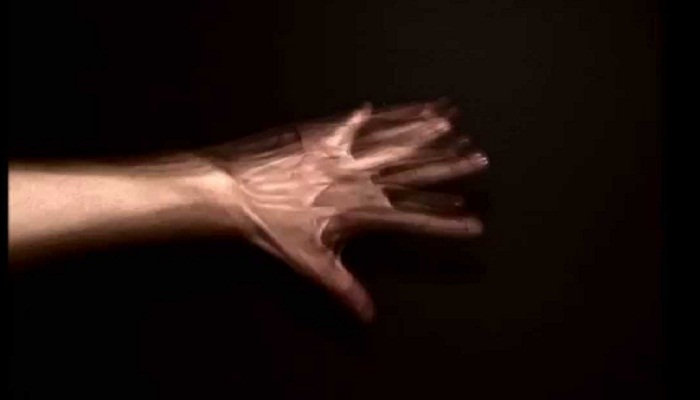 Alien-Hand-Syndrome-Netmarkers