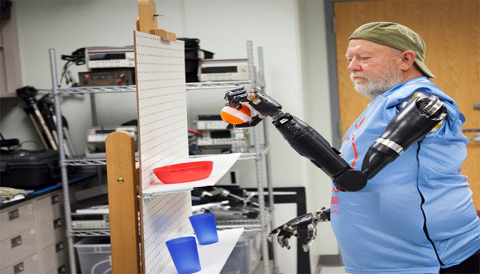 first-prosthetic-arm-Netmarkers