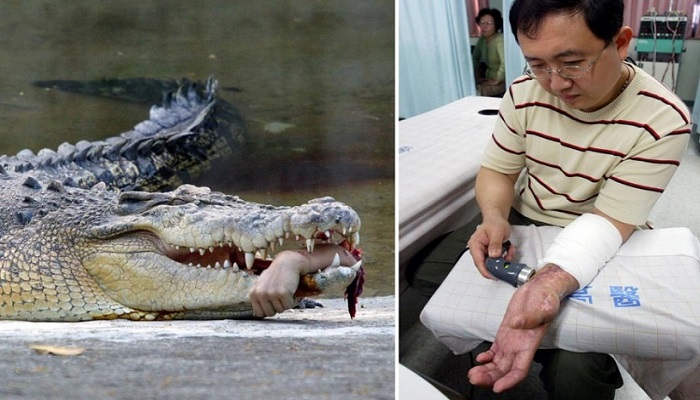 Reattachment of Forearm After Crocodile Attack netmarkers