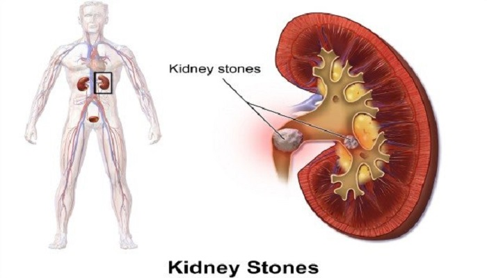 kidney-stone-netmarkers