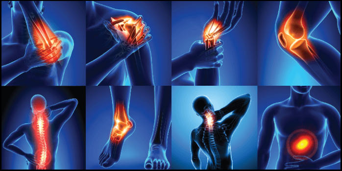 10 Signs Showing Lack Of Vitamin C In Your Body - Joint Pain - NetMarkers